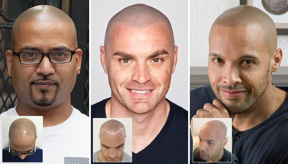 Scalp Micropigmentation FAQ