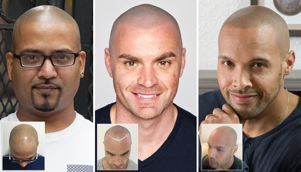 Scalp Micropigmentation Hair tattoo, UK and New York