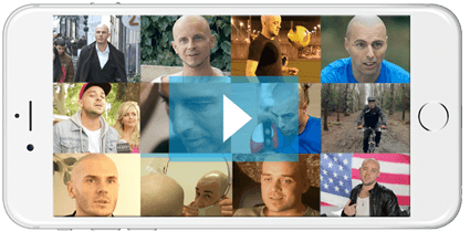 Scalp Micropigmentation Hair Tattoo Videos