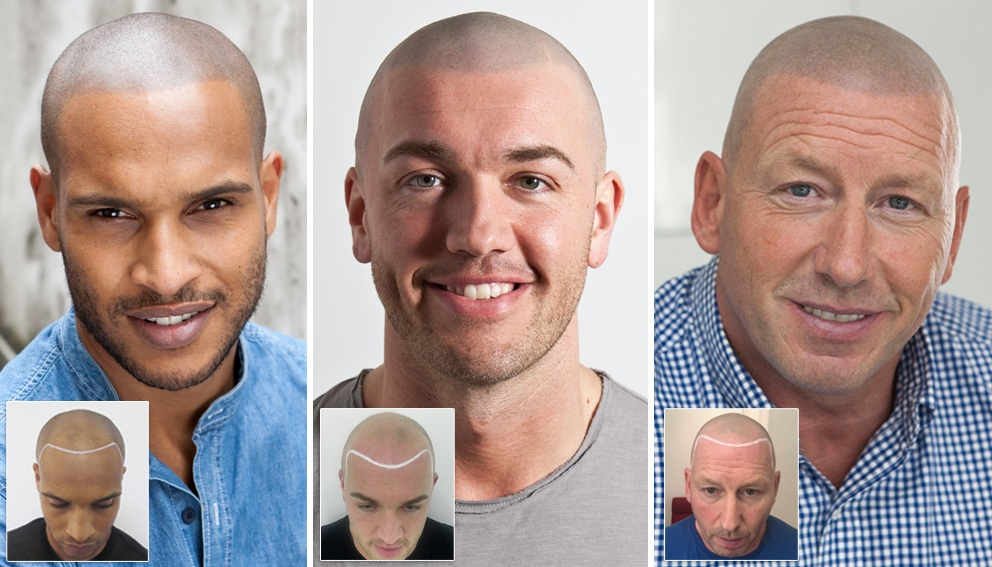 Natural Looking Scalp Micropigmentation Hair Tattoo Treatment results in the UK and New York