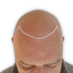 Andy with hair loss before hair tattoo