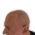 Angus with bald head before smp