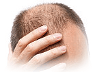 Scalp Micropigmentation for Diffused Hair Loss