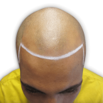 Moza before hair tattoo