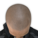 Moza show scalp micropigmentation result