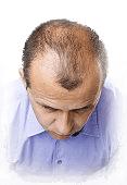 Scalp Micropigmentation for Receding Hairline