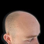 Ollie bald before scalp micropigmentation