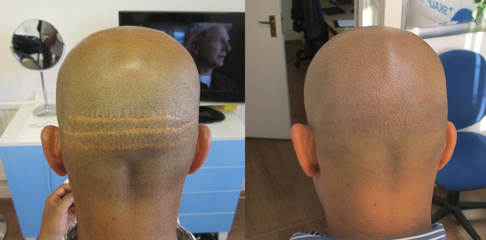 Hair transplant scar camouflaged with scalp micropigmentation