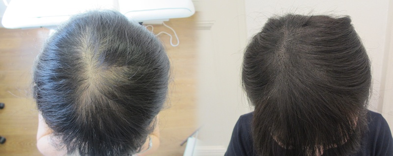 Cure Women's Hair Loss with Scalp Micropigmentation