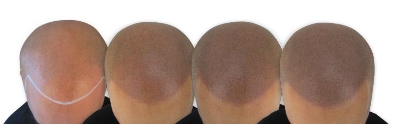 Scalp Micropigmentation Treatment Sessions