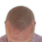 Andy after soft hairline scalp micropigmentation