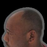 Adeola before hair loss cure