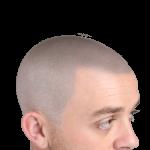 Ollie after scalp micropigmentation treatment