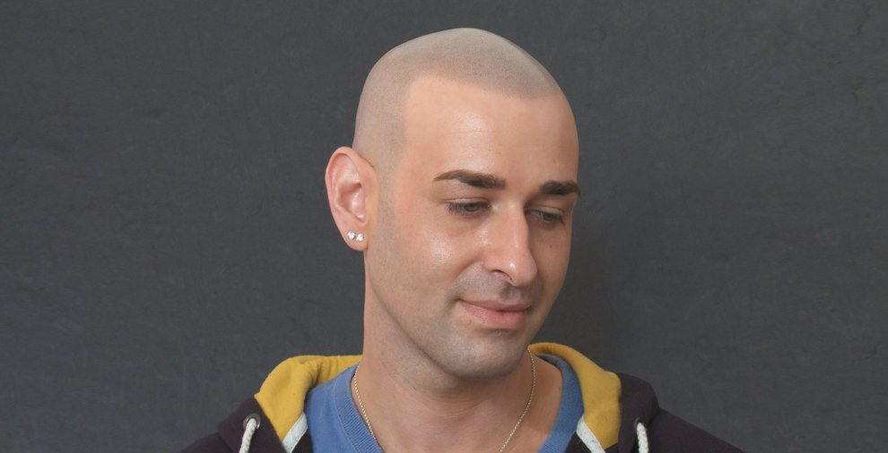 Joe showing natural scalp micropigmentation result