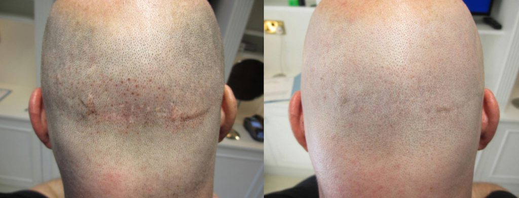 Scalp Micropigmentation for Hair Transplant Scar Camouflage