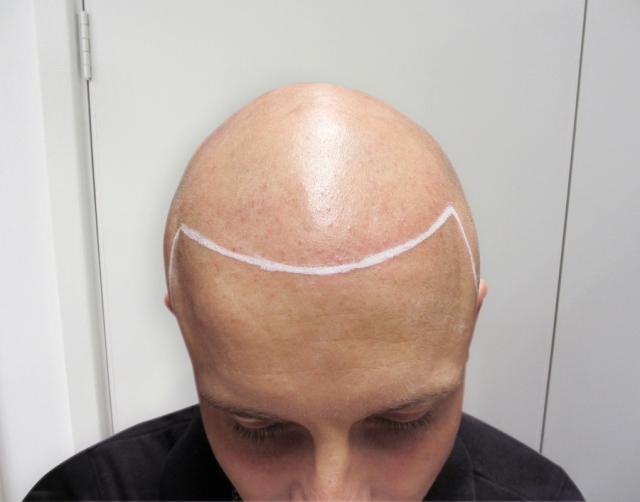 Tristan Bald Before Scalp Micropigmentation