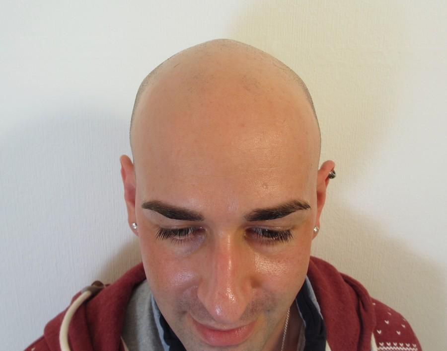 Joe Before SMP Hair Tattoo