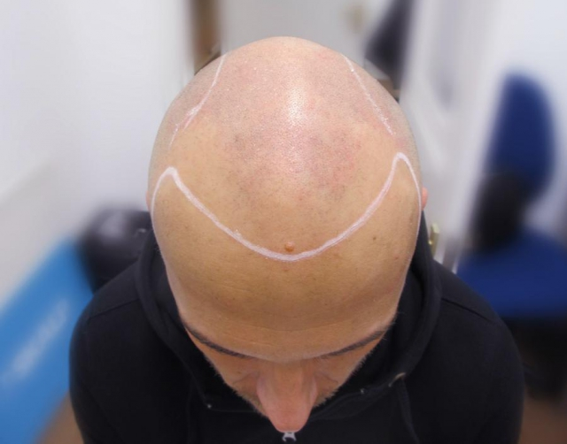 Marcin Bald Before Hair Tattoo