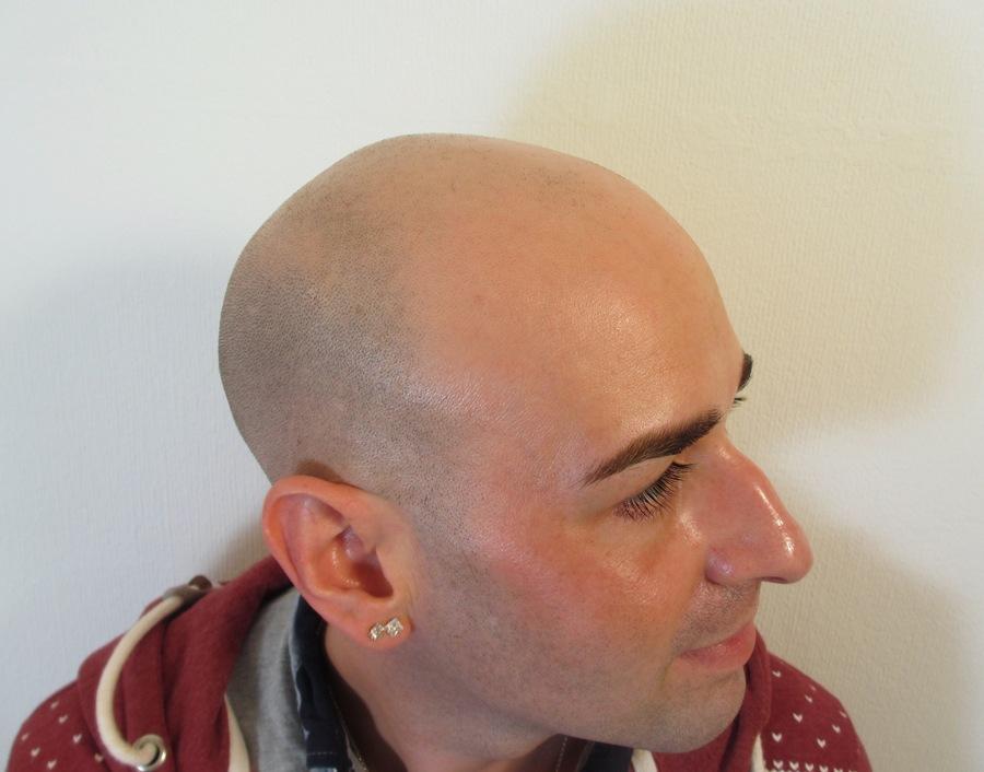 Joe Before Hair Tattoo