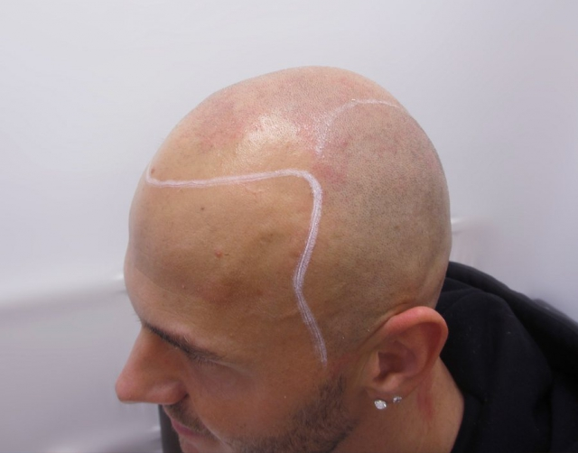 Marcin Before Scalp Micropigmentation