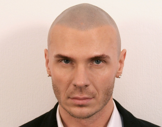 Marcin After Hair Loss Cure