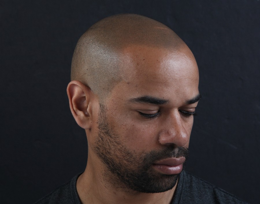 Dan After SMP Scalp Micropigmentation results