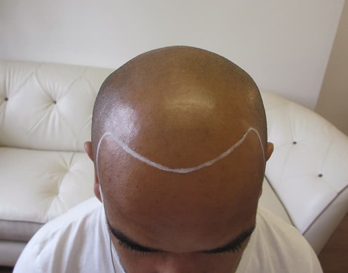 Dan before Scalp Micropigmentation 1