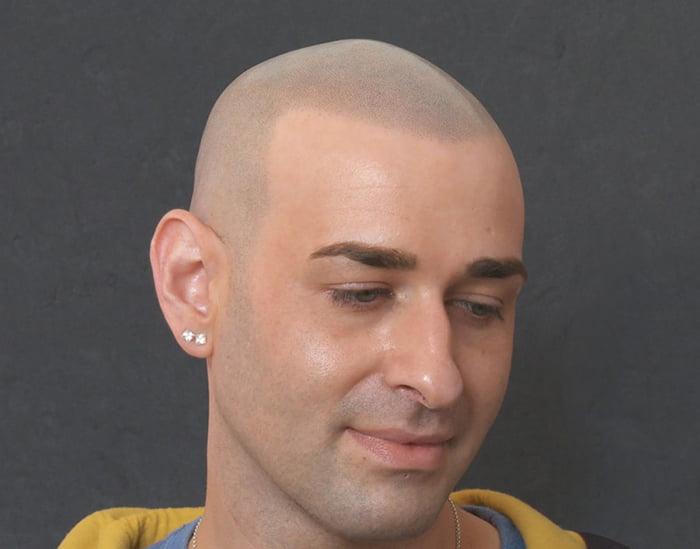 Joe After Scalp Micropigmentation 2