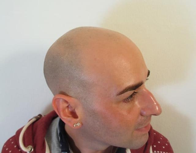 Joe Before Scalp Micropigmentation 2