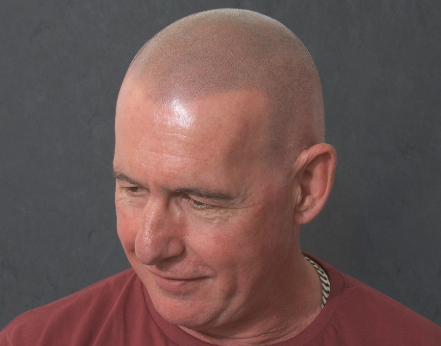 Les Natural SMP Hair Result