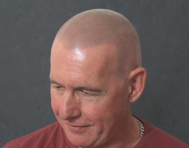 Les After Scalp Micropigmentation