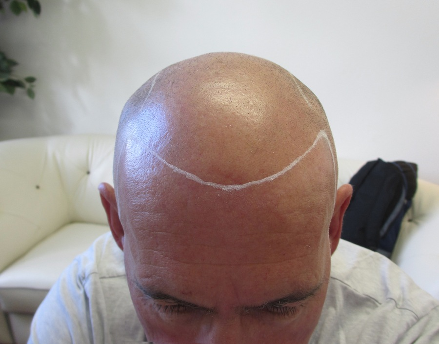 Les Before Scalp Micropigmentation