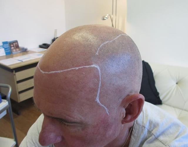 Les Before Scalp Micropigmentation