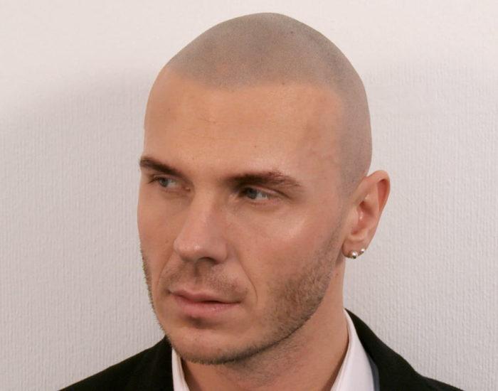 Marcin After Scalp Micropigmentation