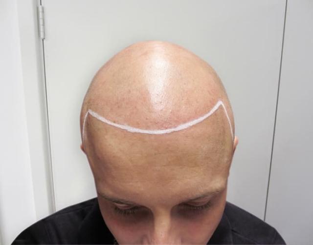 Tristan T Before Scalp Micropigmentation 1