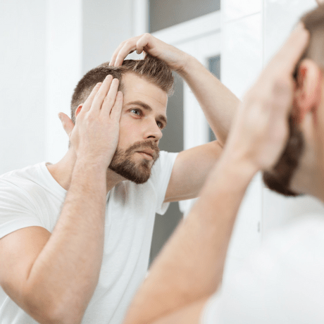 can you prevent male pattern baldness