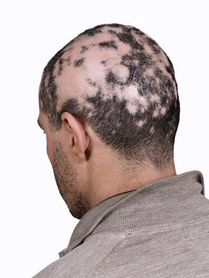 man with alopecia