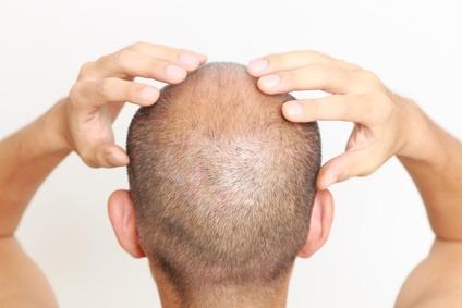 head with partical balding head massage