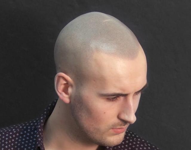 Jack b After Scalp Micropigmentation 2