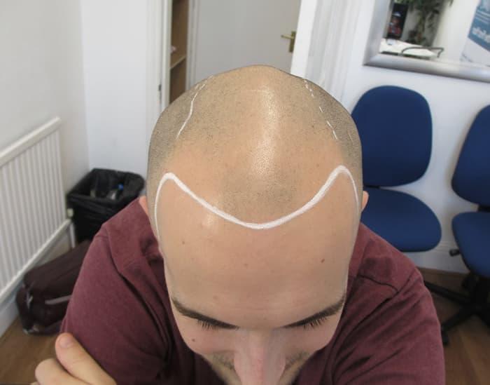 Jack b Before Scalp Micropigmentation 1