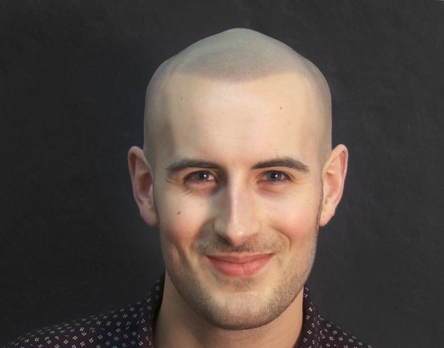 Jack showing great Scalp Micropigmentation result