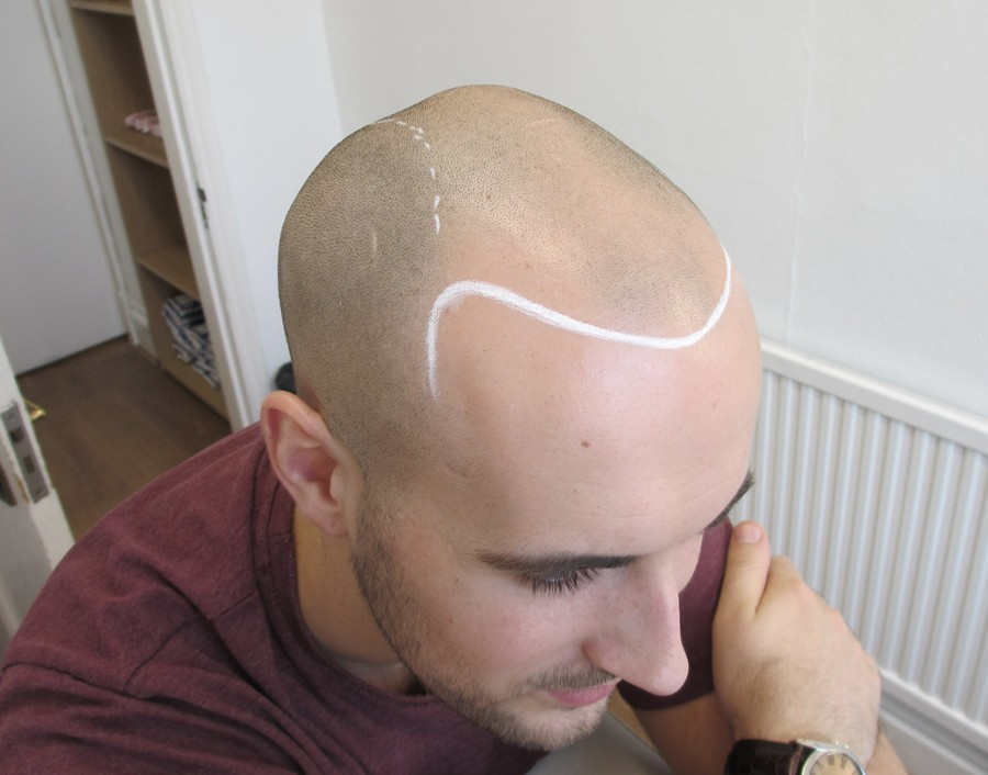 Jack Before having Scalp Micropigmentation