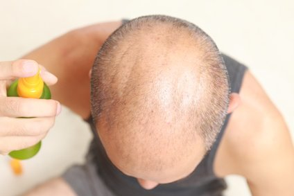 how to get a healthy scalp - Scalp care