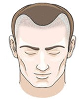 Scalp Micropigmentation | Hairline Tattoo | Treatment Cost | Skalp®