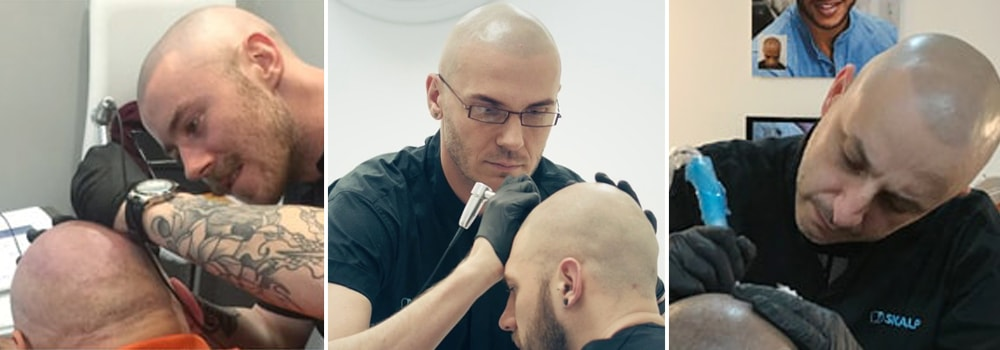 Scalp Micropigmentation Practitioners