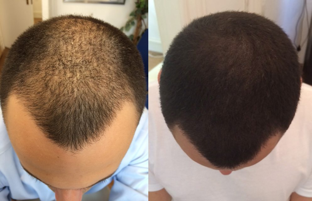 The Ultimate Solution For Thinning Hair Skalp Micro