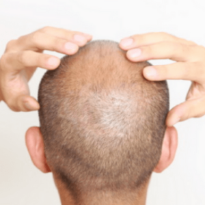 does drug use speed up hair loss? Cocaine and hair loss
