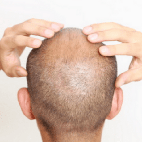 should i shave my hair? Suffering with hair loss