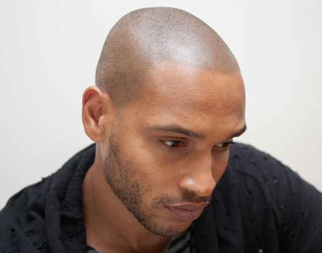 Black Skin After Scalp Micropigmentation results