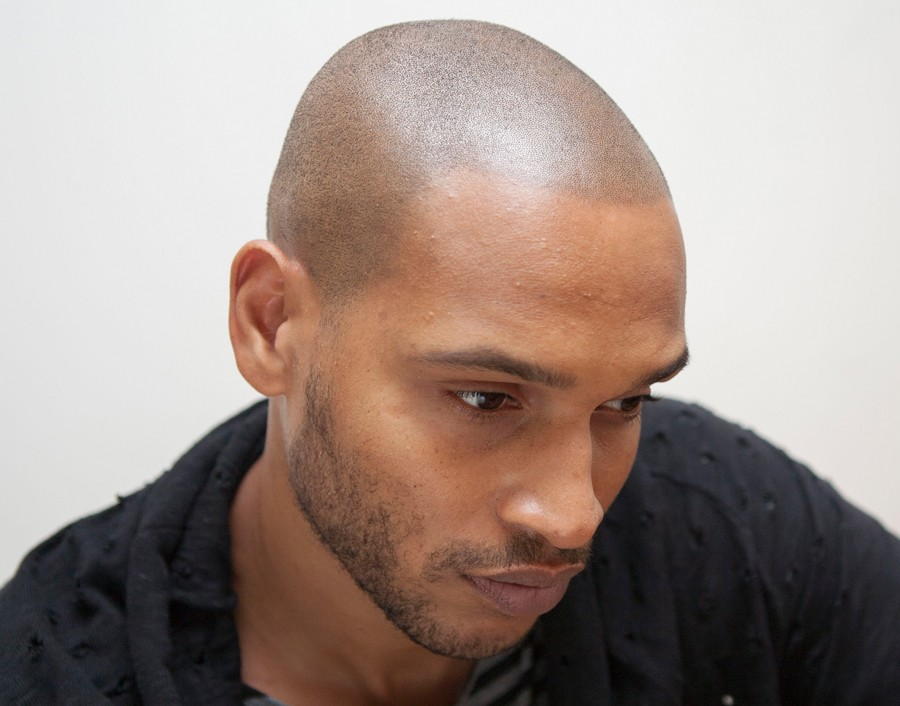 Black Skin After Scalp Micropigmentation